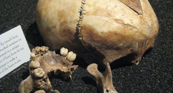 Skull on display in museum
